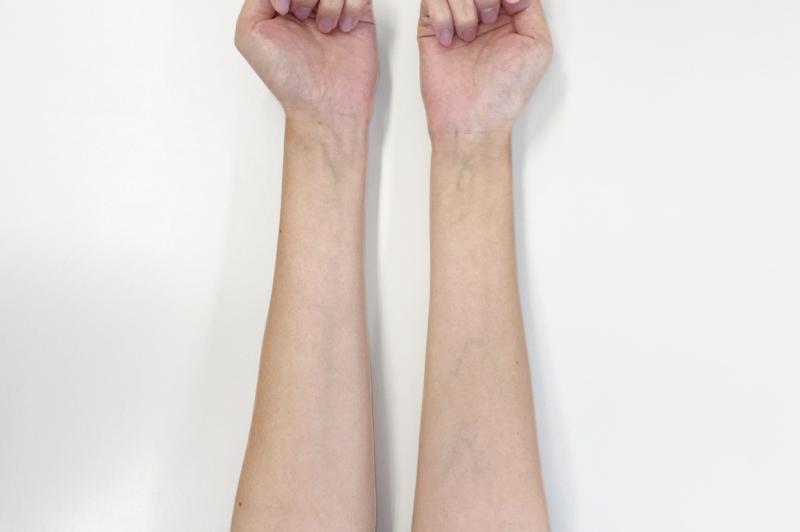 腕の内側の血管